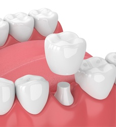 3D illustration of dental crown
