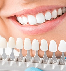 Color-matching chart for dental implants