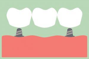 dental crowns dental bridge dental implants
