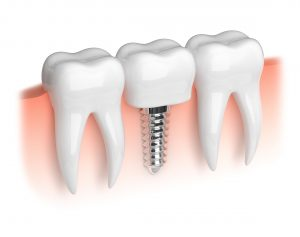 single dental implant illustration