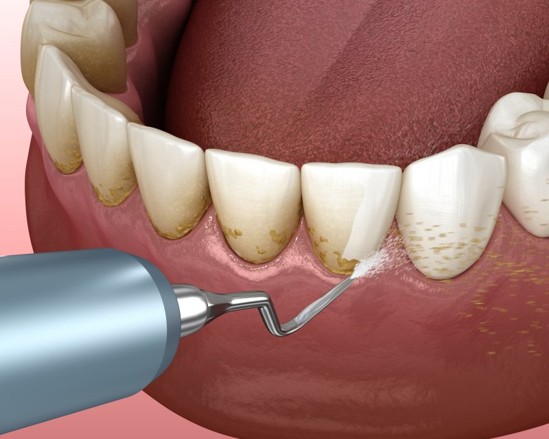 an image of plaque being removed from a person's teeth