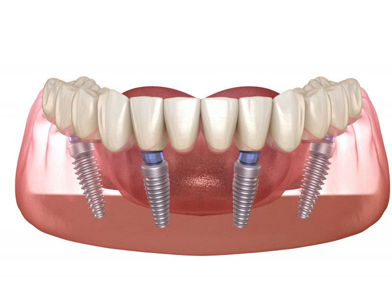 a digital image of a bottom row of teeth secured to All-On-4 dental implants