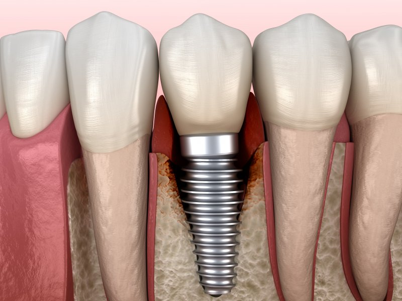 a digital image of a bottom row of natural teeth with a dental implant replacement