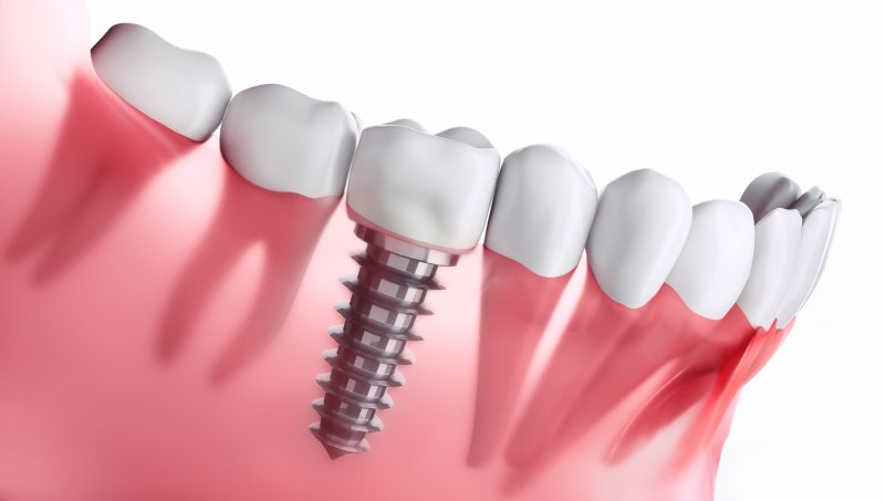 a digital image of a single tooth dental implant situated next to healthy teeth along the bottom arch