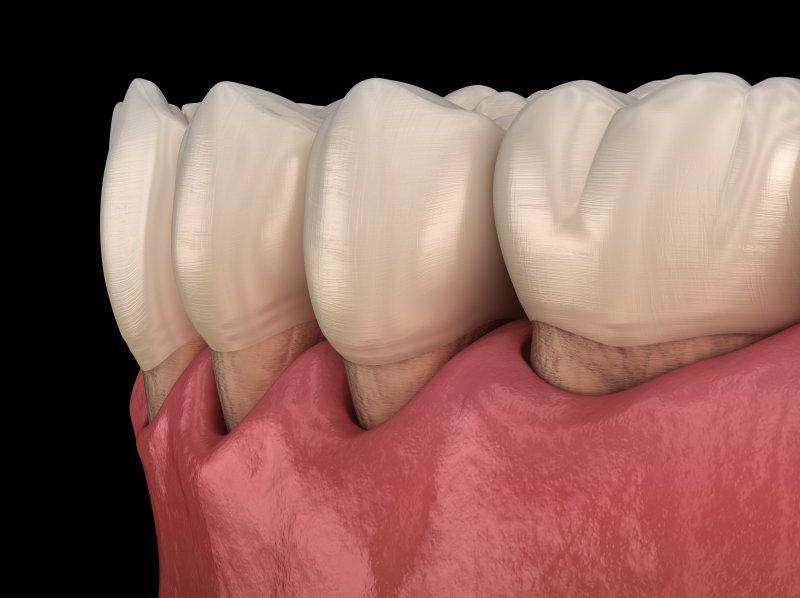 a digital image of a receding gum line