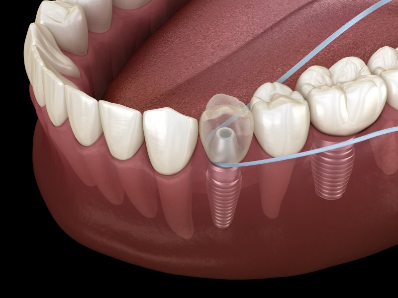 A digital image of a piece of dental floss moving back and forth around the base of a dental implant restoration