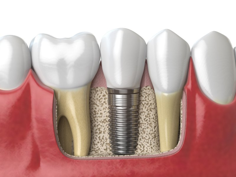 a digital image of a dental implant sitting firmly in the jawbone next to two healthy teeth