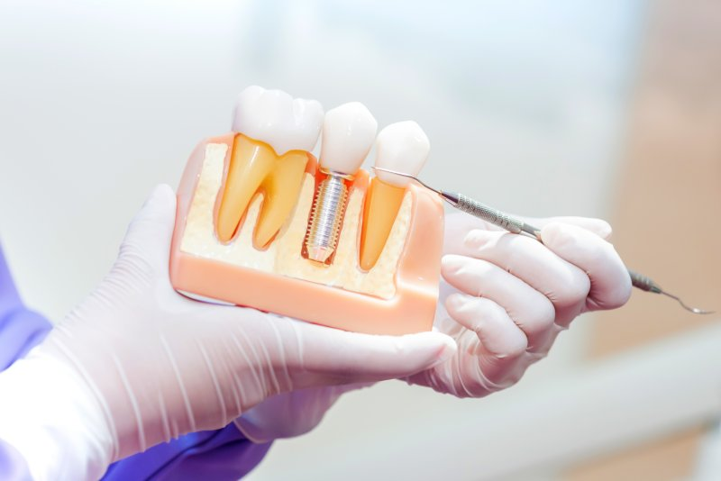a dental professional pointing to a cross-section of a mouth mold that contains a single tooth dental implant