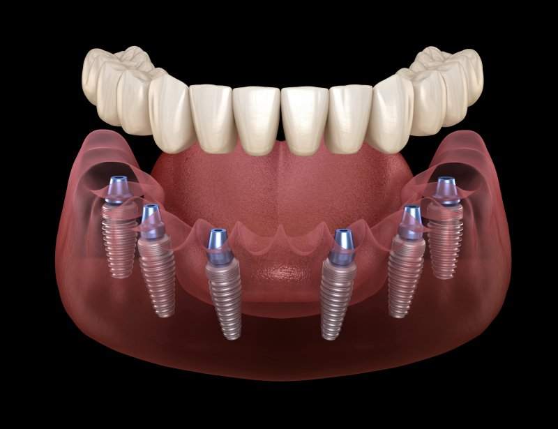 implant dentures in Jacksonville
